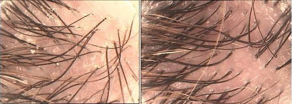 Před a po užívání trichologických přípravků