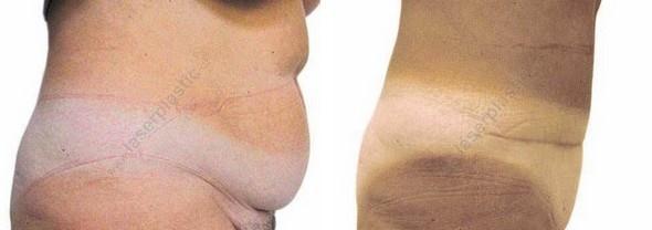 Plastika břicha – Abdominoplastika PŘED a PO