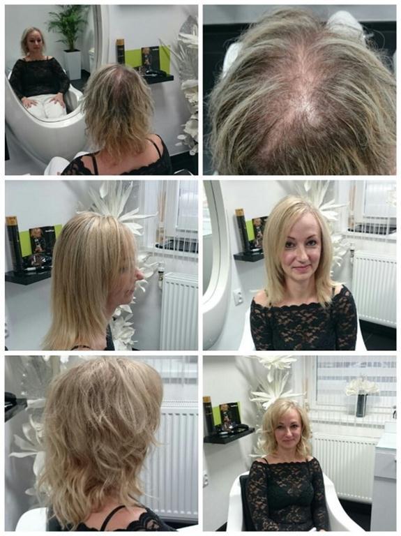 zahustovani vlasu
