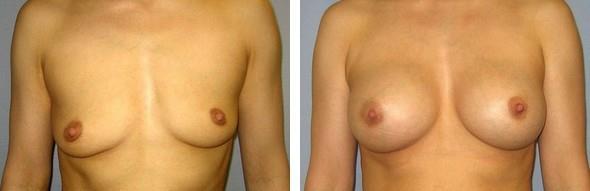 Zvětšení prsou – Augmentace PŘED a PO